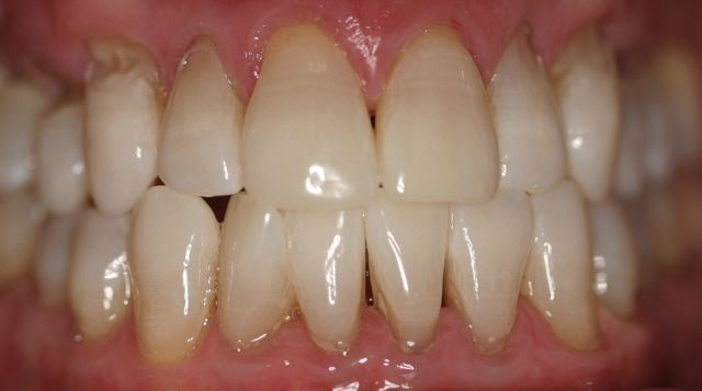 Kor Whitening After Before & After Gallery