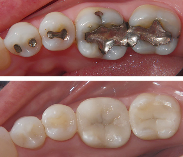 ganday dant Before & After Gallery