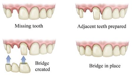 1 DENTAL BRIDGES