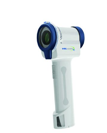 Laser Oral Cancer Screening